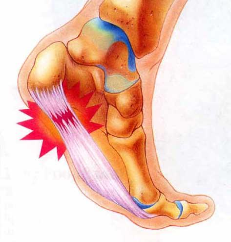 I have a sharp pain in the heel of my foot. It only hurts when I walk down steps.?
