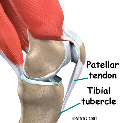 What are signs and symptoms of a patellar tendon injury?