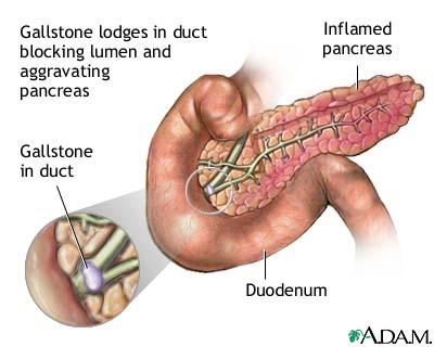 I have chronic pancreatitis and iwould like to know about causes?