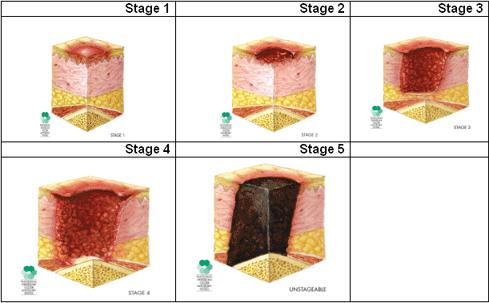How do pressure ulcers form?