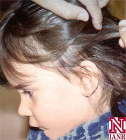 Are prescription medication better than over-the-counter medication for removing lice?