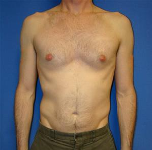 What are the symptoms of an infection of the chest wall?