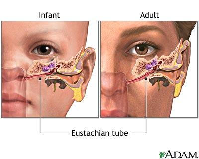 What could be a cause of frequent ear infections?
