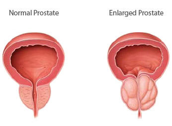 What are the effects of a enlarged prostate?