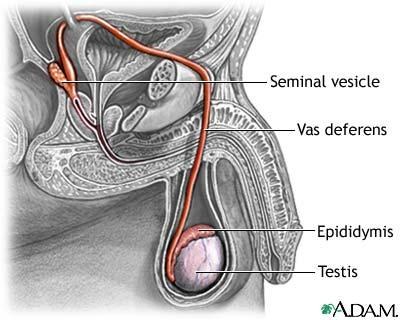 Can you ejaculate or release sperm if your testicles don't work or the epidydimus is twisted?