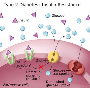 How come patients with diabetes mellitus type 2 are insulin resistant?