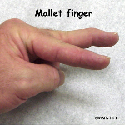 I have been diagnosed with mallet finger w/a fracture. Will I be able to return to sports?