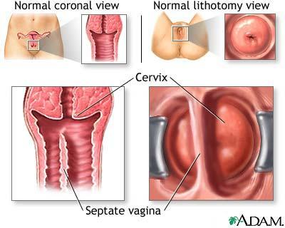 What does it mean if I have something called a septate vagina?