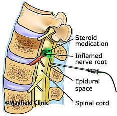 How long before sciatic nerve pain from injection goes away?