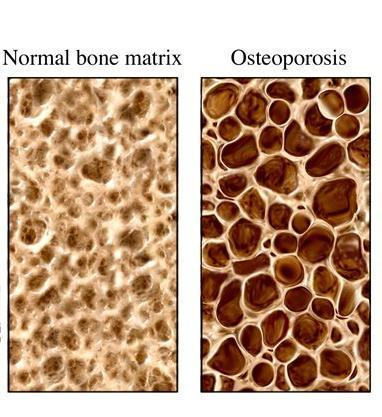 Is there a surgical procedure for osteoporosis?
