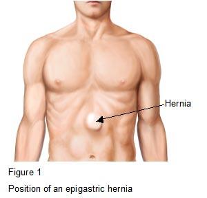 A doctor in mexico told me that I have a epigastric hernia but my doctor in usa told me that it was a hiatus hernia what is the diffferences and how to determine which one I have thanks?