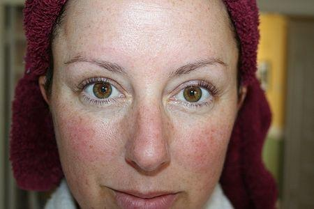 How can you heal facial swelling due to alcohol consumption?