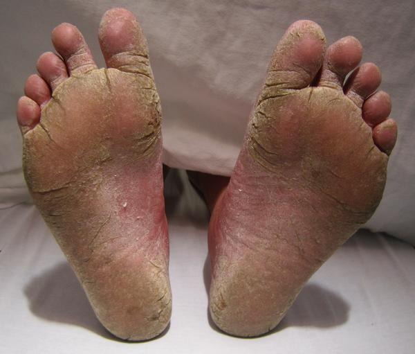 What can be the couse of swelling finger feet and soulder since 6 month?