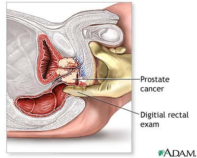 Digital rectal exam lithomy position?
