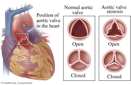 How does the condition aortic stenosis occur?