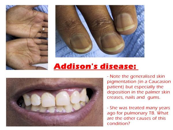 What does addisons disease do to a person?