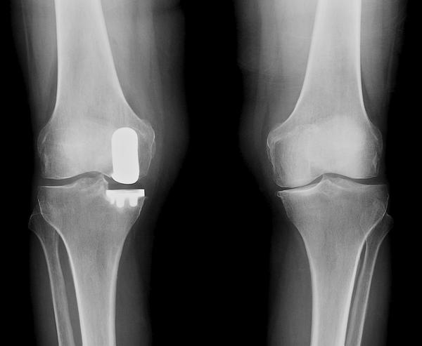 What all happens during a partial knee replacement?