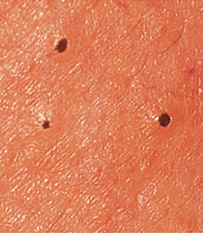 Black Spots on Skin, Dark, Tiny, Pictures ... - lightskincure