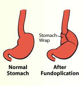 How common is gas-bloat after fundoplication? How bad is it? I suffer from chronic bloat and burp a lot. I worry about creating a worse problem.