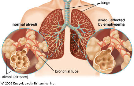 Why if you smoke for a long time do you have shortness of breath?