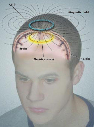 If I was on a barbituat sleeping pill at 16 when I had one seizure would this cause a postive on an eeg?