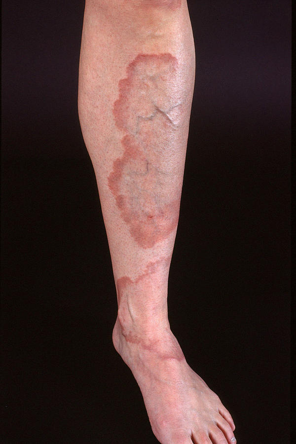 What is the treatment for granuloma annulare?