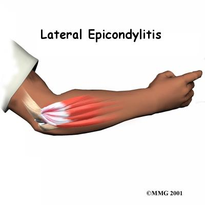 What can be done for elbow tendonitis?