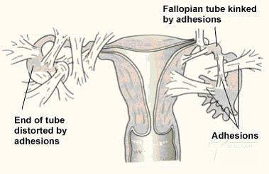 Will an appendectomy cause blocked fallopian tubes?