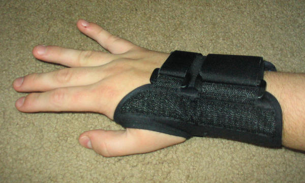 What can I do to reduce bruising on the wrist after an elbow fracture?