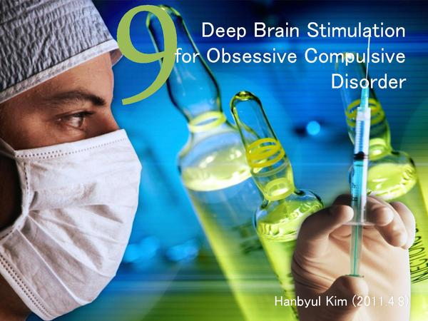 Is deep brain stimulation recommended for severe ocd?