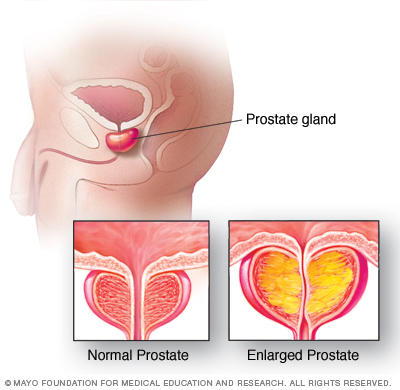 What are common symptoms of prostate problems?