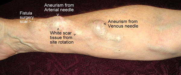 Why does dialysis patients have bumps on their arms?
