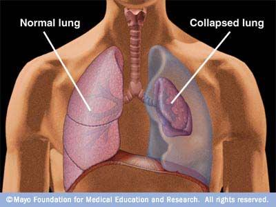 Why does only one lung collapse in spontaneous pneumothorax?