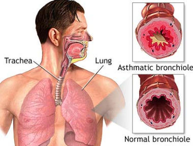 I m 34, male. Since last 2 yrs I m suffering from asthama. I never had this problem in my life. But now its very difficult to breathe.?