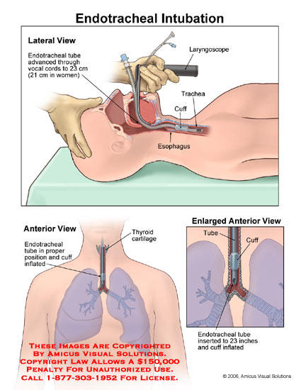 What are the risks of having an endotracheal tube inserted?