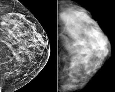 Should I be seeking a second opinion when the radiologist stated an area on my baseline breast scan to be within normal tissue after a repeat mammogram and ultrasound? He would like to see me again in 6 months to compare scans.