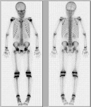 How does nuclear medicine do a bone scan?