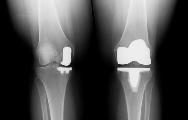 Partial knee replacement vs total - how does a doctor choose?