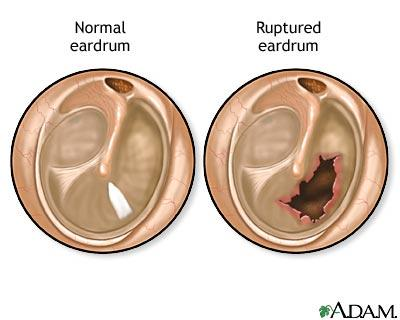 What does it feel like to rupture your eardrum, ?