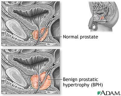 What can I do and not do if I have benign prostatic hyperplasia?