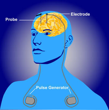 Are there any surgical procedures out there than help cure depression. With medical technology being so advanced these days, I was wondering. Thanks?