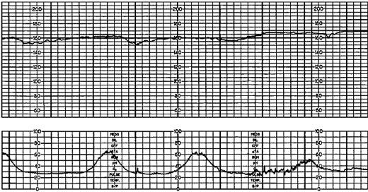 Whats wrong when low variability of fetal heart rate?