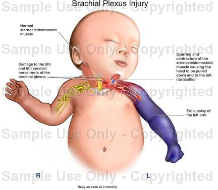 What is a brachial plexus injury like?