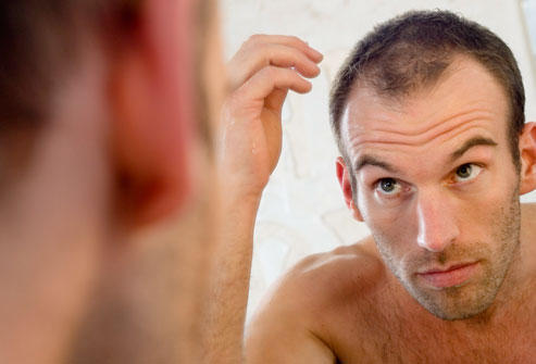 Pls, can cipla stop baldness? And where can I get this drug in nigeria? Lagos to be precise. Thank you