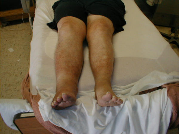 Why would a foot and leg turn bluish red when upright after scl surgrry?