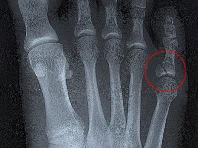 If I've broken my toe what are signs that its a more serious break that needs more than home treatment?