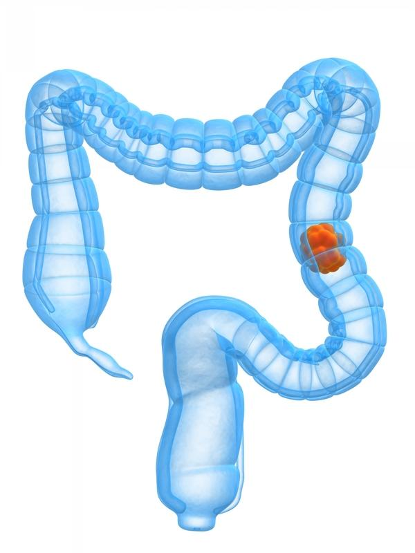 What is the correct percentage of colon cancer incidence in 20-34 age group?
