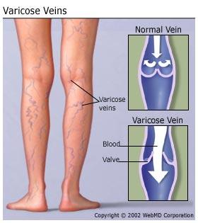What causes extremely prominent veins?