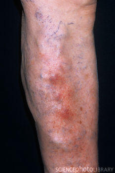 If you get hit in the varicose vein and a big bump forms, is it a clot?