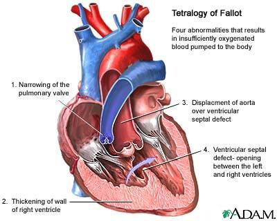 Is tetralogy of fallot a hereditary problem?